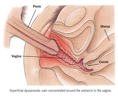 Sex pain with deep penetration