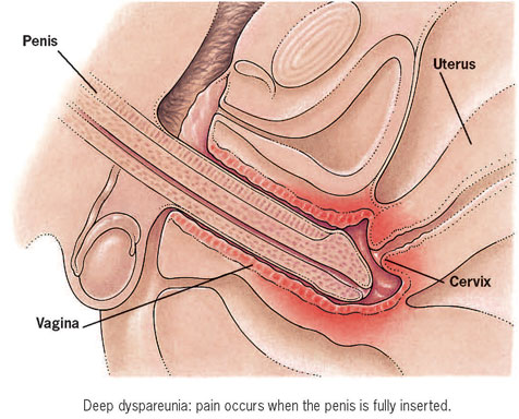 Causes of pain during deep penetration opinion