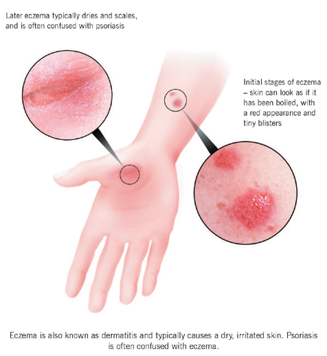 Eczema Types, Treatment, Home Remedies & Symptoms