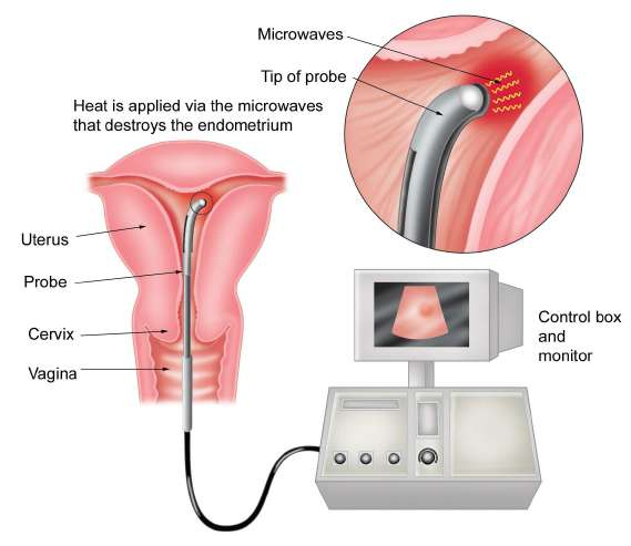 Hysterectomy Minor Surgical Treatment Family Doctor