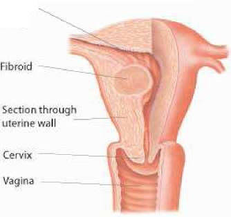 hysterectomy-5