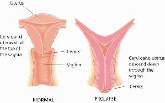 My vagina before and after sex