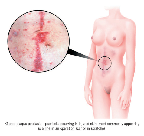 types of psoriasis | family doctor, Skeleton