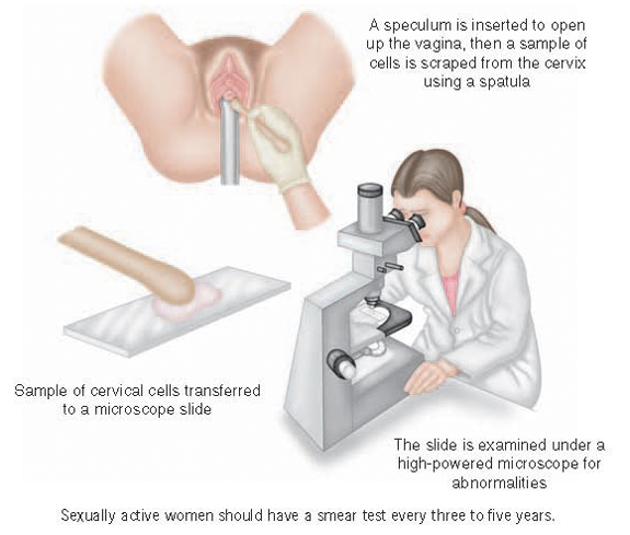 A smear test examines cervical cells