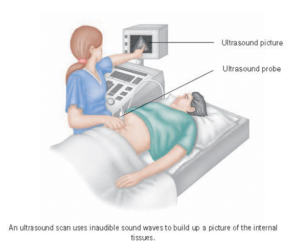 Ultrasound of the abdomen